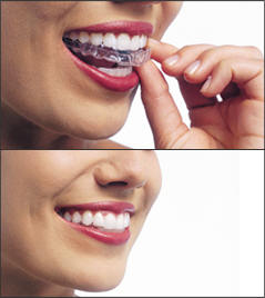 invisalign treatment cost